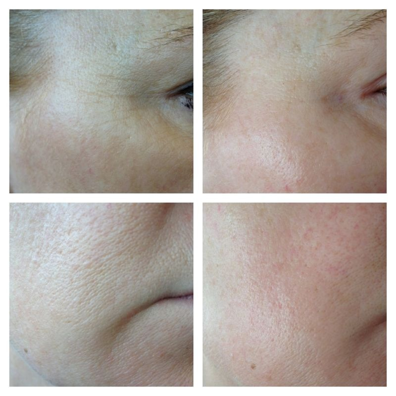skinade before and after